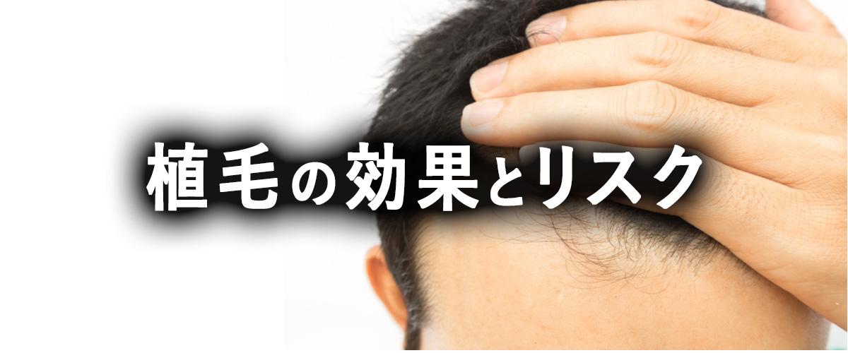 薄毛治療に有効な植毛の効果