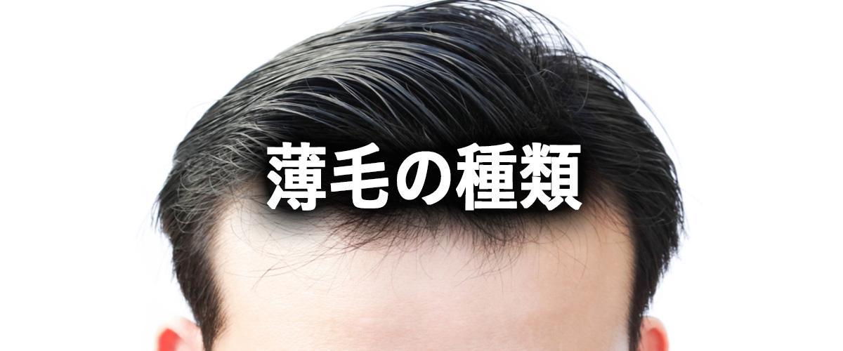 薄毛の種類を知ろう!