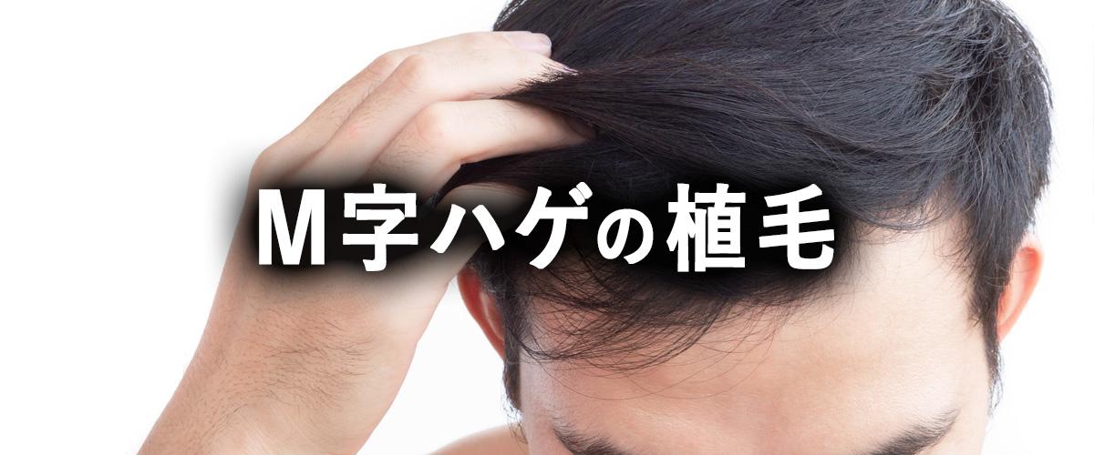 植毛によるM字はげの治療