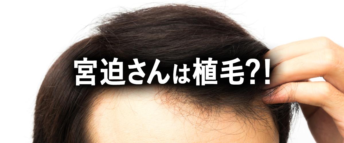 宮迫博之さんの植毛疑惑を解説