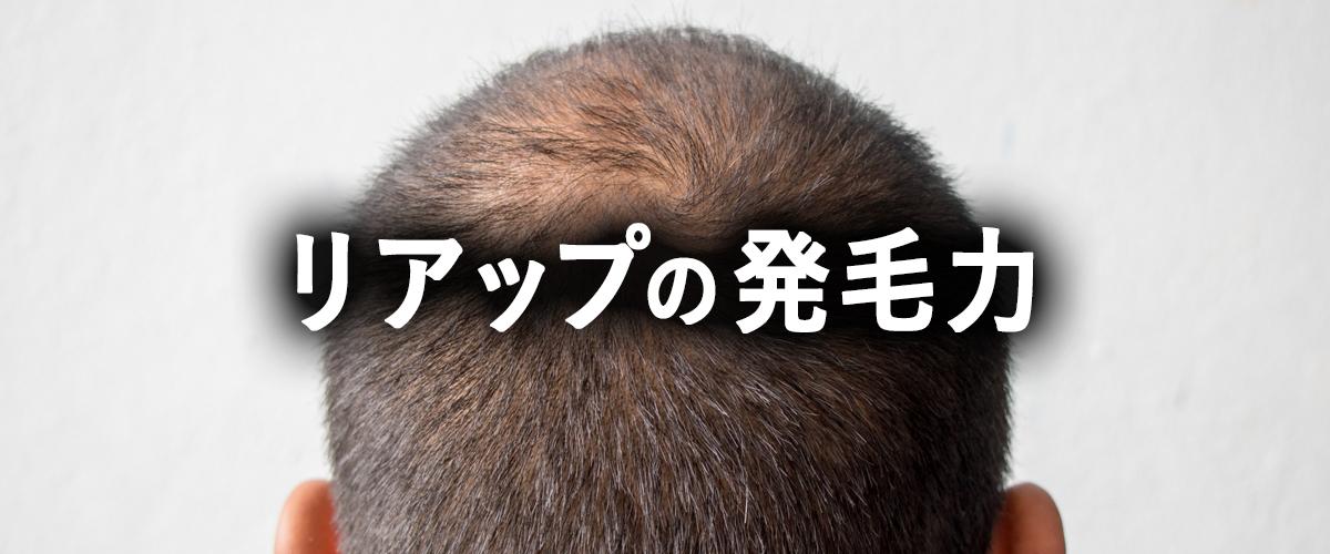 発毛剤リアップの効果と注意点