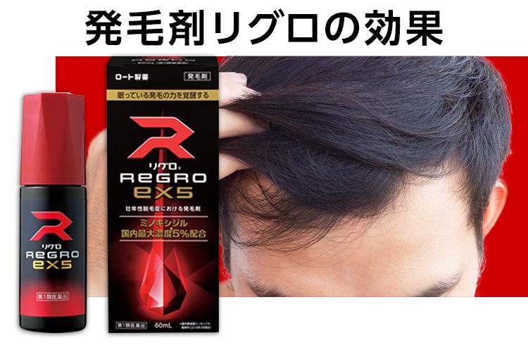 発毛剤「リグロEX5」の効果と注意点