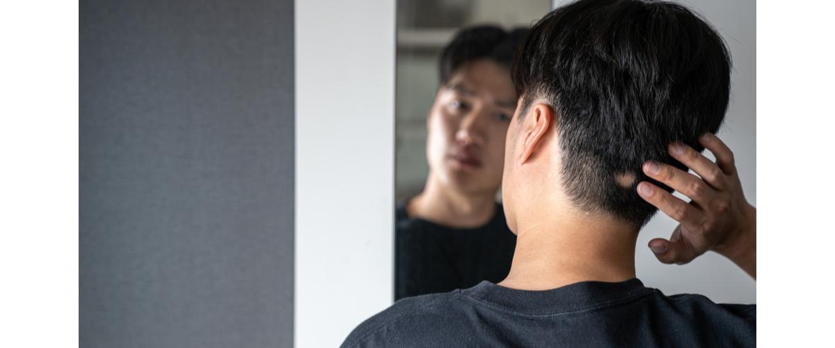 円形脱毛症を気にする男性